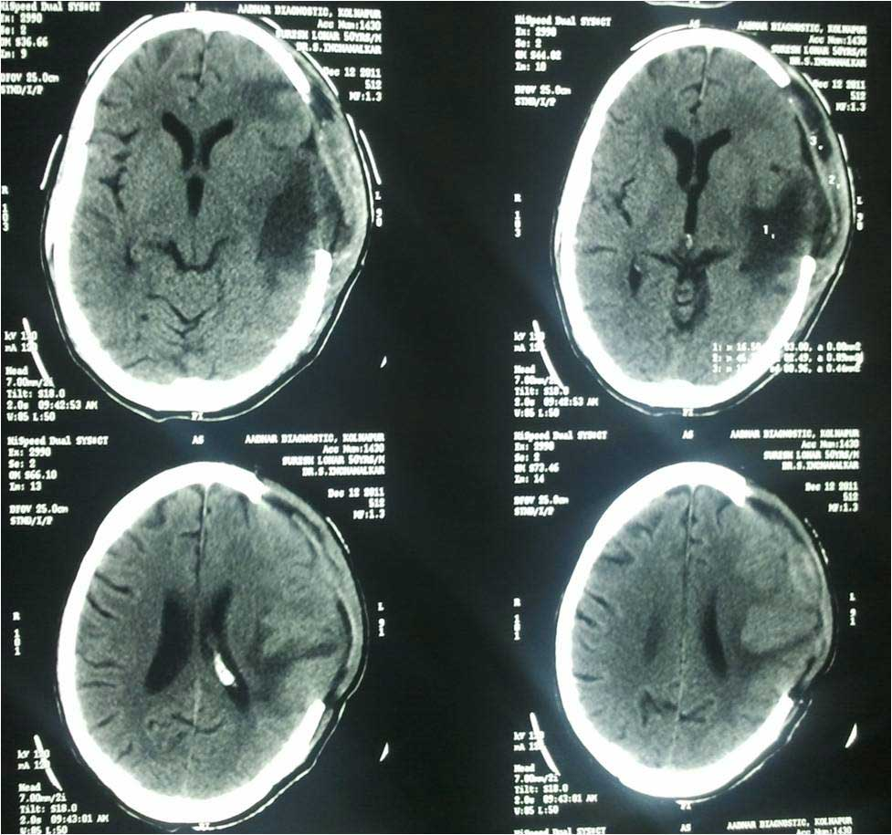 What is a brain contusion? 22
